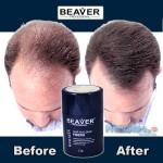 Beaver Hair Building Fibers, Μικρο-ίνες Φυσικής Κερατίνης κατά της Τριχόπτωσης & Αραίωσης των Μαλλιών 12γρ