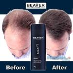 Beaver Hair Building Fibers, Μικρο-ίνες Φυσικής Κερατίνης κατά της Τριχόπτωσης & Αραίωσης των Μαλλιών 28γρ